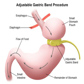 bariatric-obesity-surgery